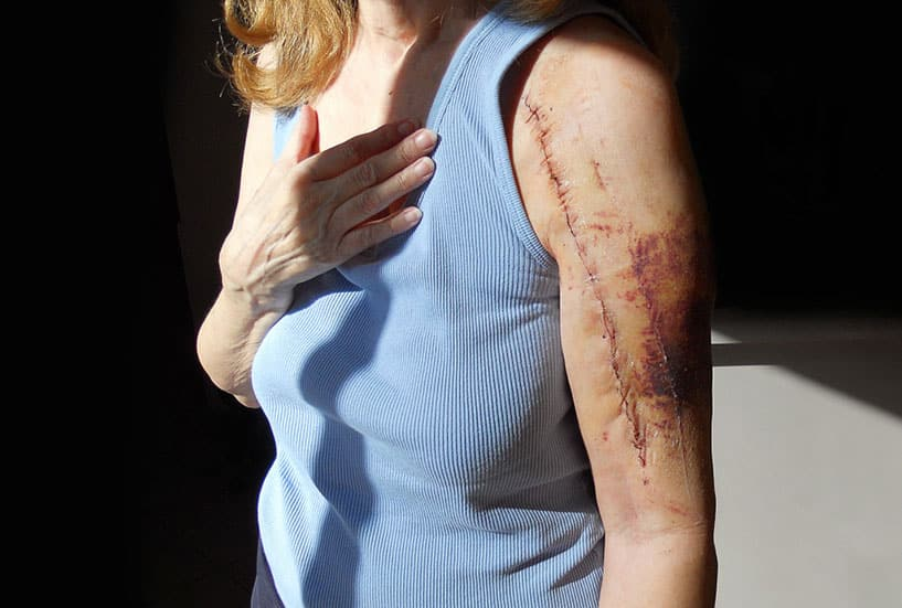 Scarring and disfigurement lawyer in Mesa, AZ