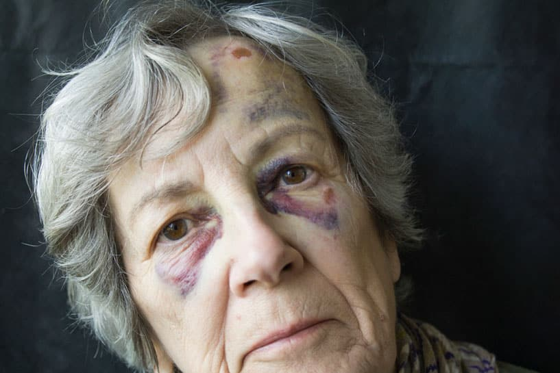 Old woman with signs of physical abuse in Arizona