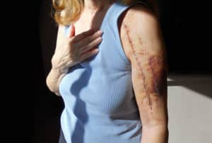 Scarring and Disfigurement Lawyer in Phoenix AZ