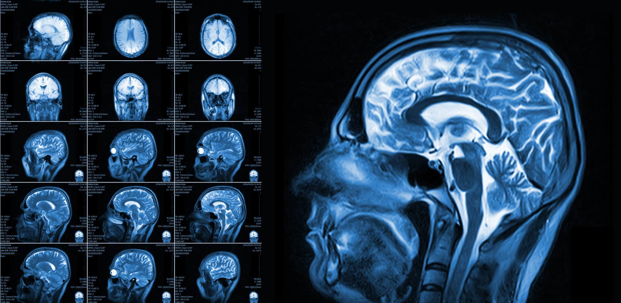 Car Accident Traumatic Brain Injury