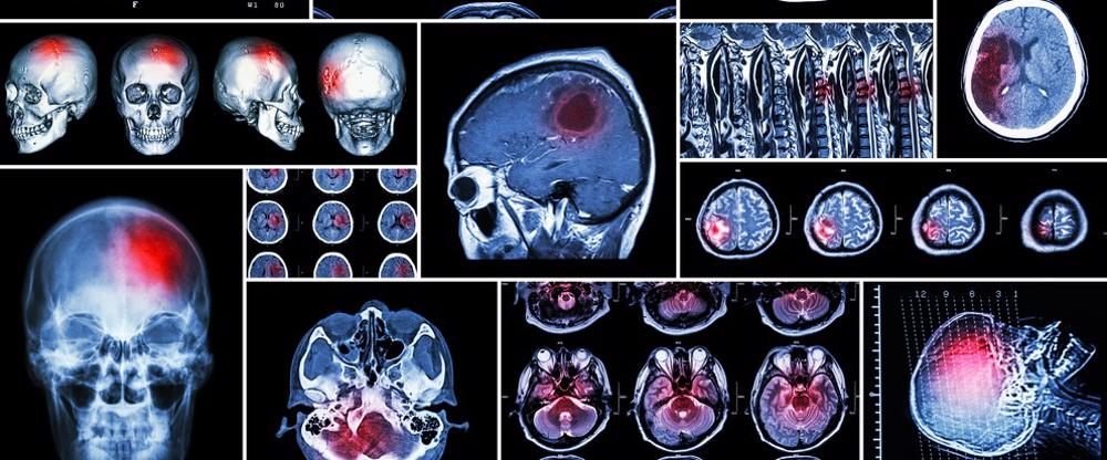 This image shows brain scans after traumatic brain injuries.