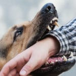 Are Dog Bites Dangerous? Answers to the Most Commonly Asked Dog Bite Questions